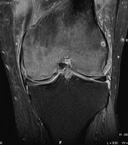 bone marrow edema knee Kasimatis